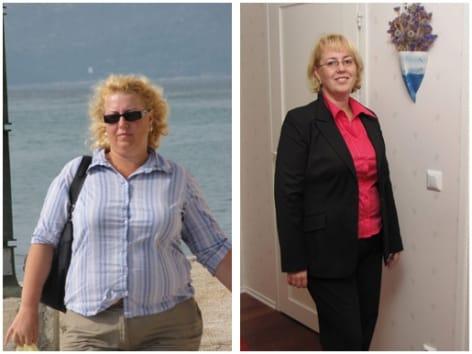 Minun tarinani: kiloista eroon lihavuusleikkauksella